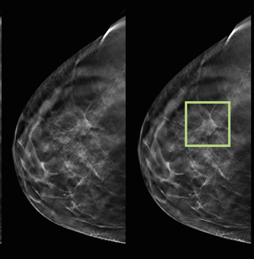 The Benefits Of 3D Mammograms